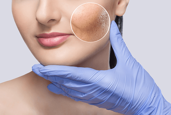 """Avoid These """"Pitfalls"""" That Are Doomed to Fail: A Guide for Laser Acne Treatment post thumbnail image"""